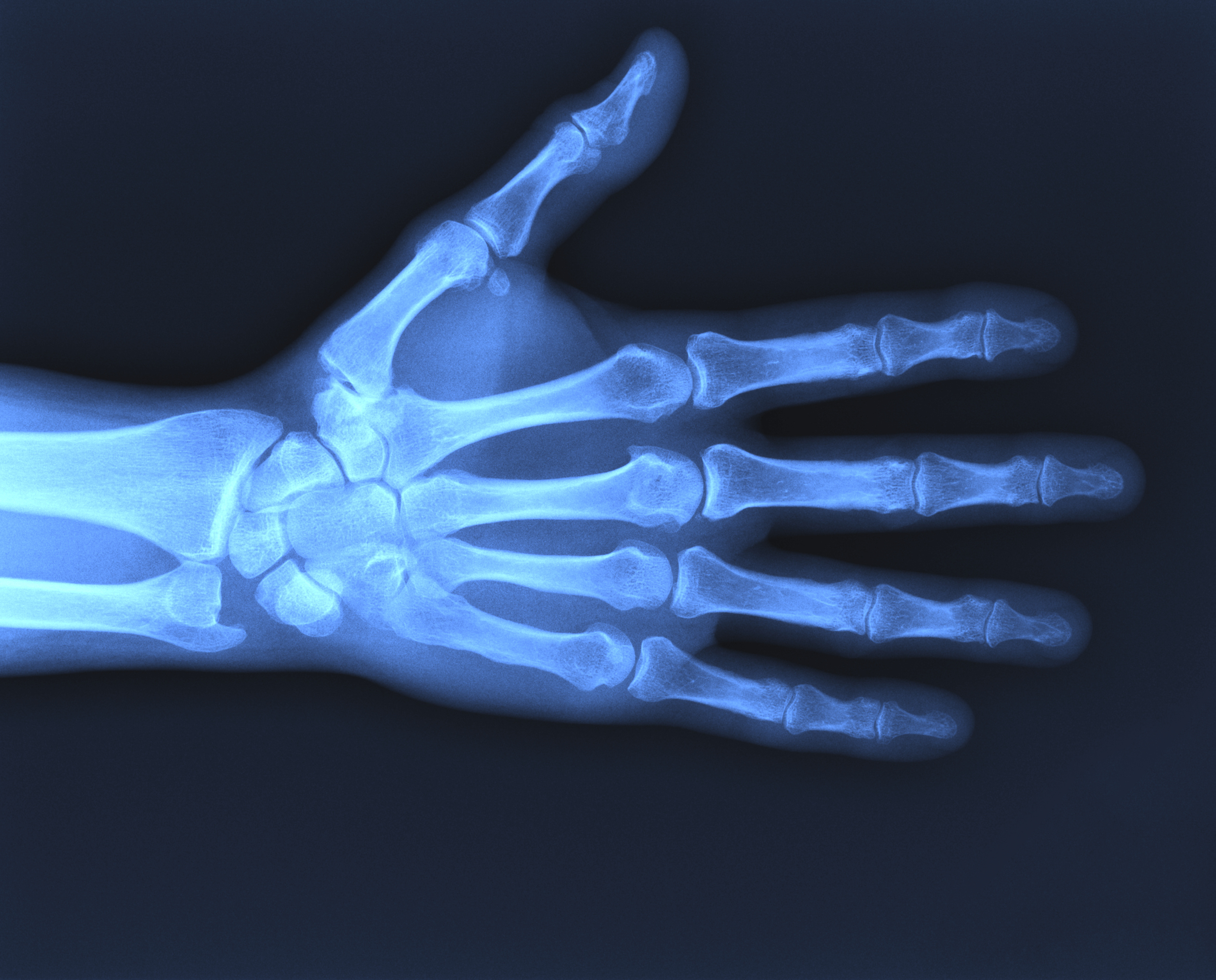New Tool For Measuring Broken Bones May Help Shorten Recovery