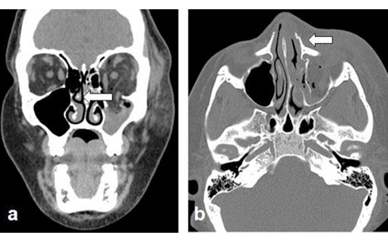 Axial Face CT Image