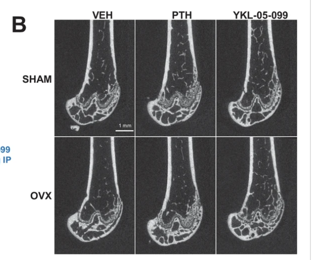 Dual Targeting Of Salt Inducible Kinases And CSF1R Uncouples Bone Formation And Bone Resorption